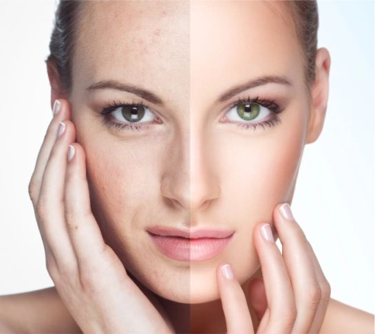 Before After MP Aesthetics Non Surgical Facial Treatments Newton Abbot