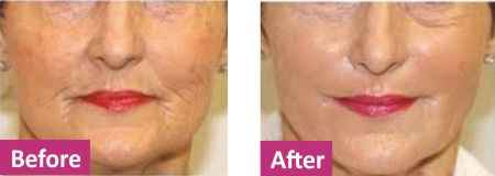 Platelet Rich Plasma before after