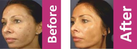 Platelet Rich Plasma before after In Newton Abbot
